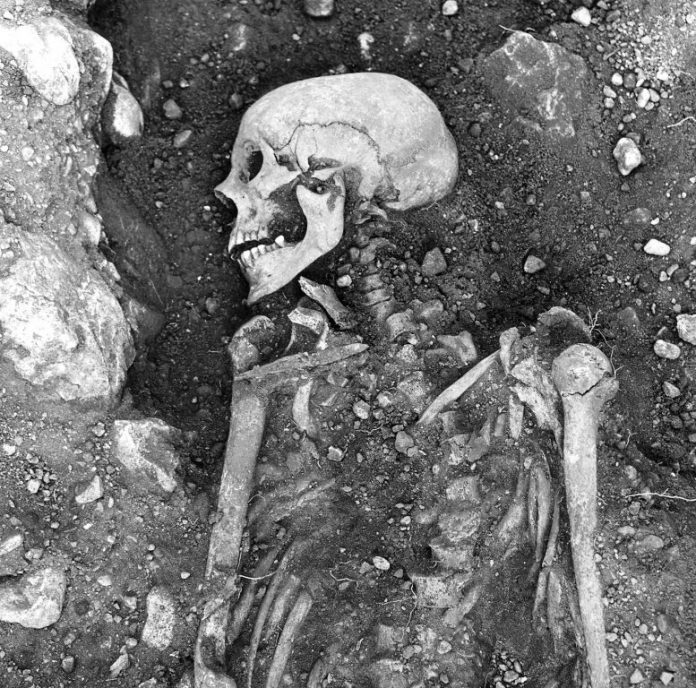 Smallpox-Infected Viking Skeleton