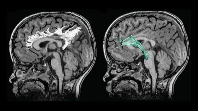 Child's Altered Brain Connectivity