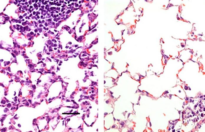 Nasal Vaccine Against COVID-19