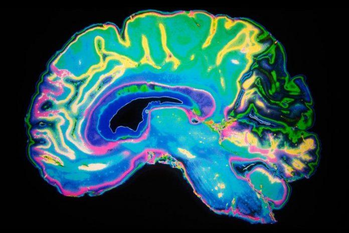 Brain Color MRI Scan