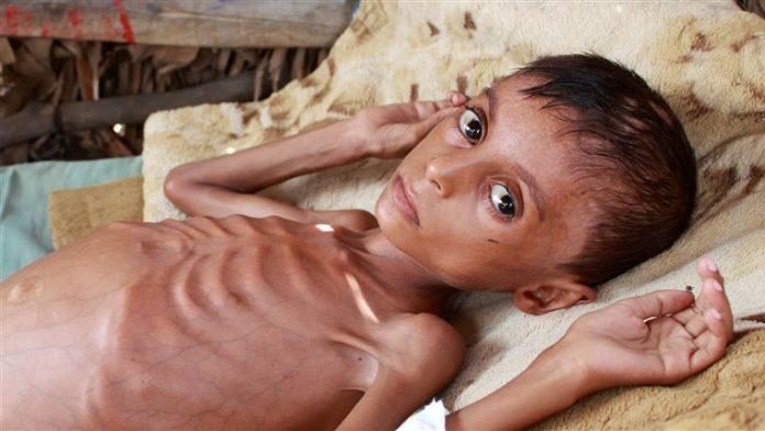 Saudis host to G-20 summit of world leaders as Yemeni civilian deaths spike