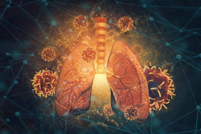Lung Disease Atlas Concept
