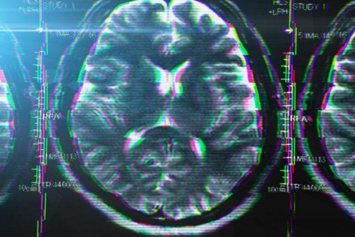 Brain Glitch Stress Disorder Concept