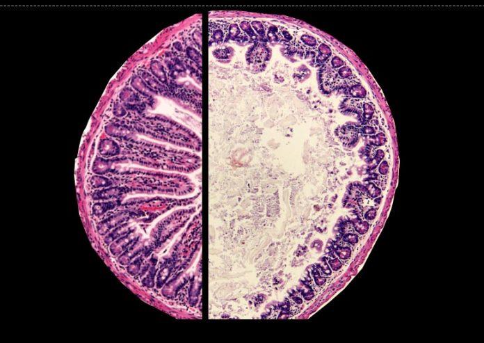 Healthy Mouse Intestine vs Environmental Enteric Dysfunction