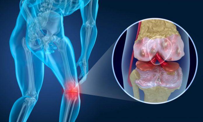 Knee Pain Concept